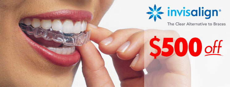 Winnipeg Invisalign Discount